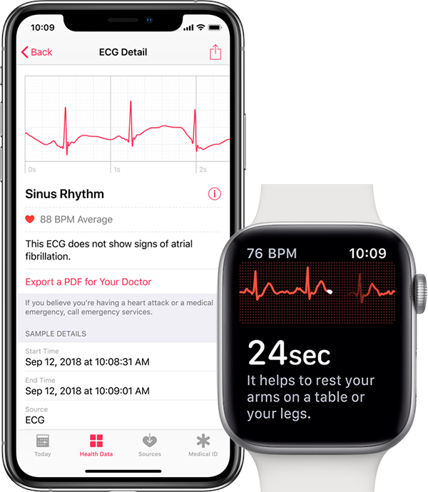 iphone apple watch ecg