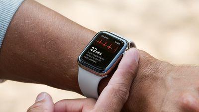 apple watch ecg wrist