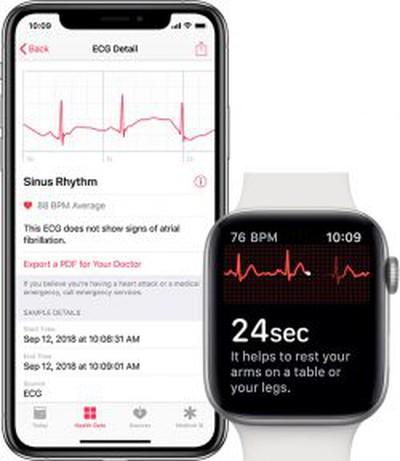 iphone apple watch ecg