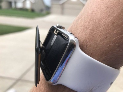 apple watch swollen