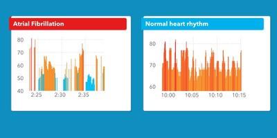 cardiogramalgorithm