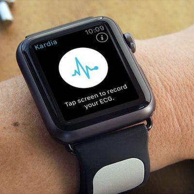 Kardia Band apple watch